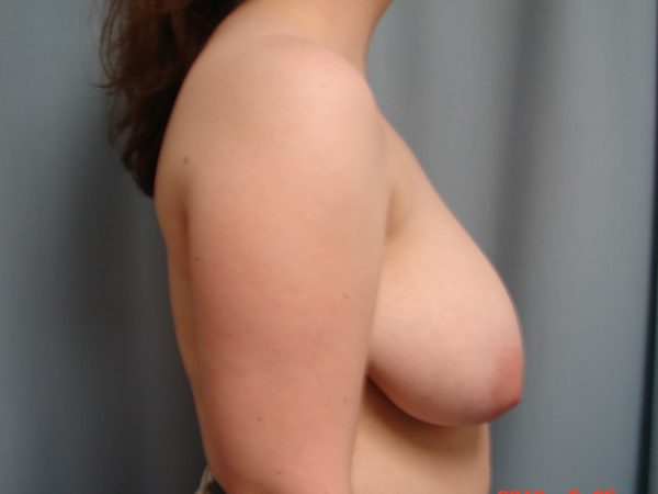 breast-reduction-pre-op-2-virginia-beach-plastic-surgeon-VA-106-JSJ