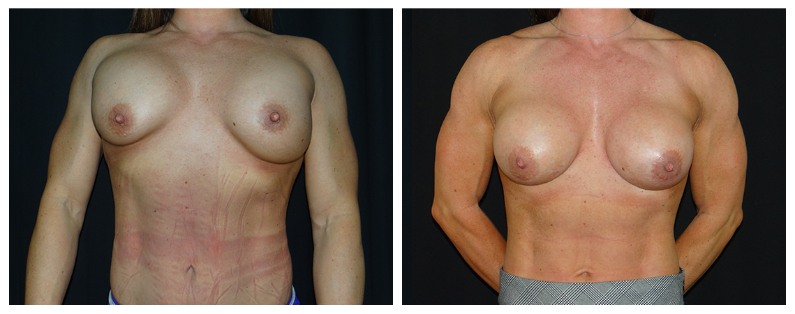 breast-revision-before-and-after-1-virginia-beach-plastic-surgeon-VA-0048-denk
