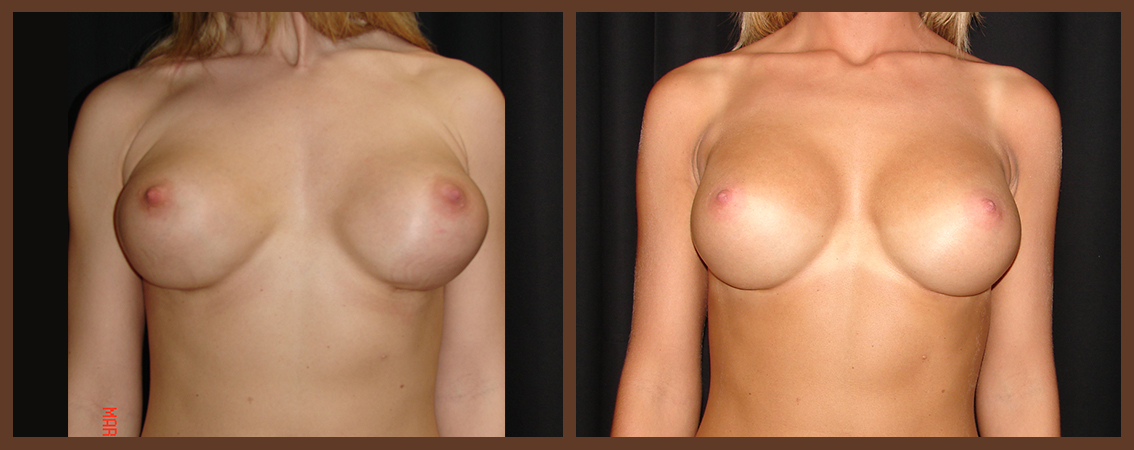 breast-revision-before-and-after-1-virginia-beach-plastic-surgeon-VA-0049-denk