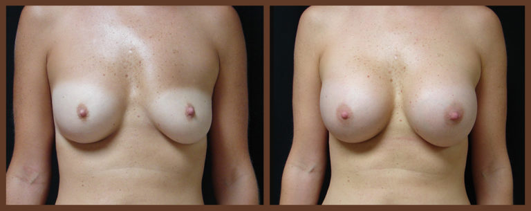 breast-revision-before-and-after-1-virginia-beach-plastic-surgeon-VA-0050-JSA