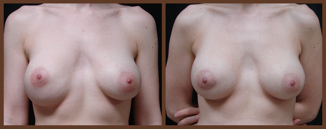 breast-revision-before-and-after-1-virginia-beach-plastic-surgeon-VA-0052-JSA