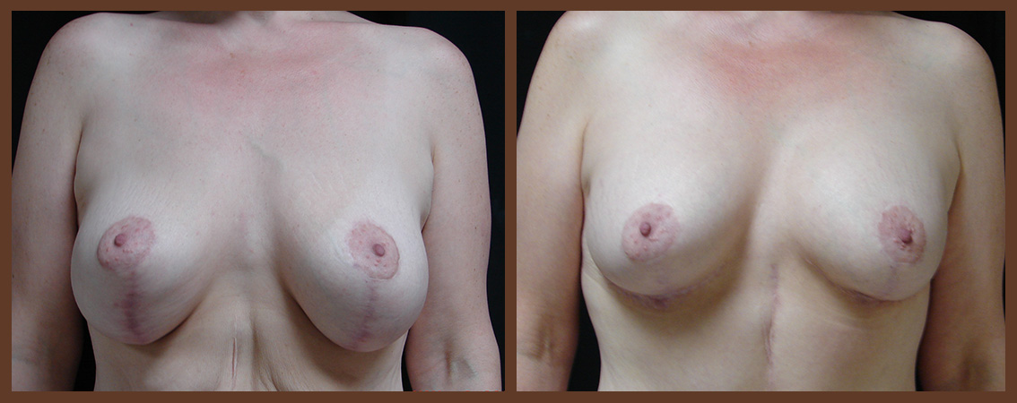 breast-revision-before-and-after-1-virginia-beach-plastic-surgeon-VA-0053-JSA
