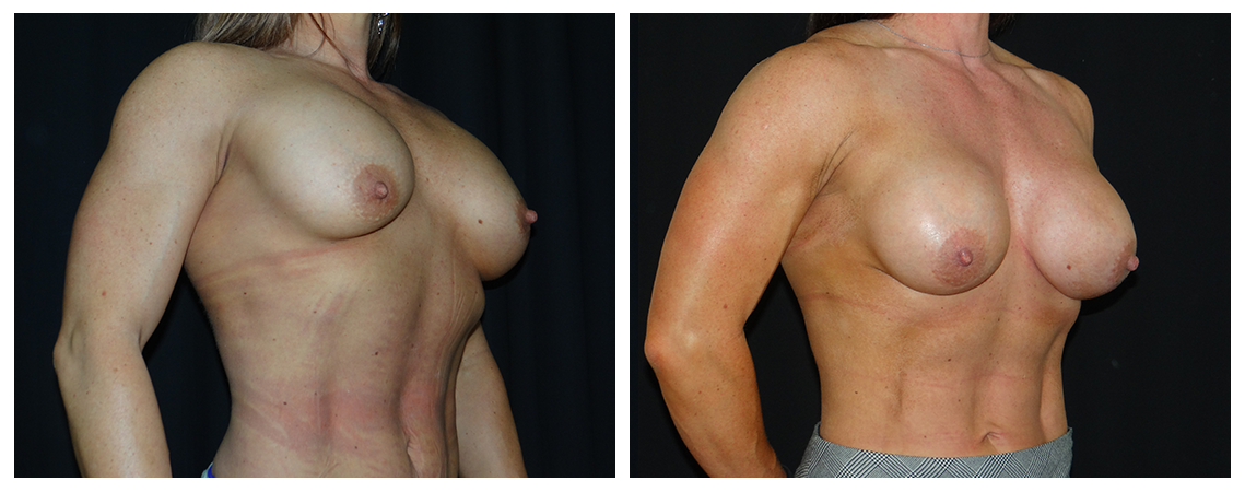 breast-revision-before-and-after-2-virginia-beach-plastic-surgeon-VA-0048-denk
