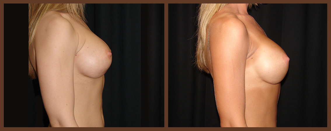breast-revision-before-and-after-2-virginia-beach-plastic-surgeon-VA-0049-denk