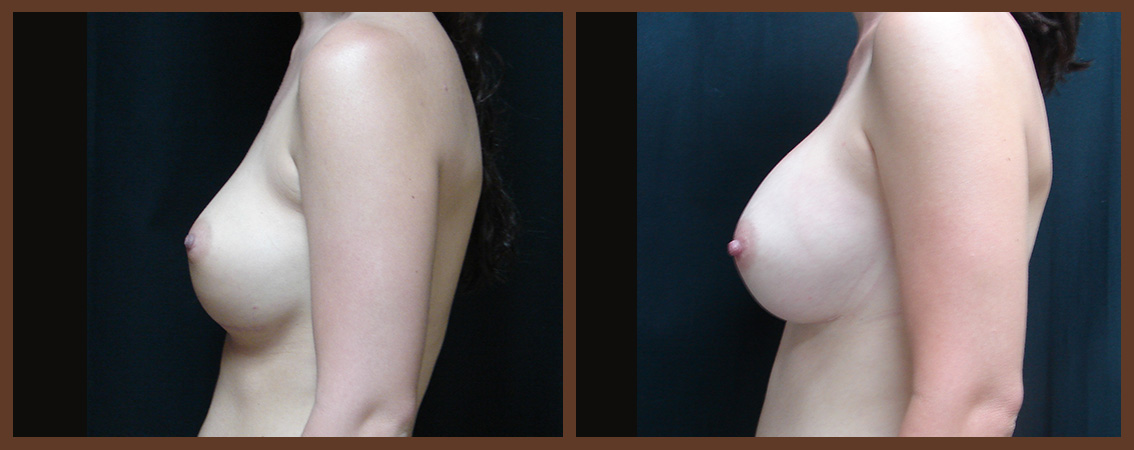 breast-revision-before-and-after-2-virginia-beach-plastic-surgeon-VA-0051-JSA