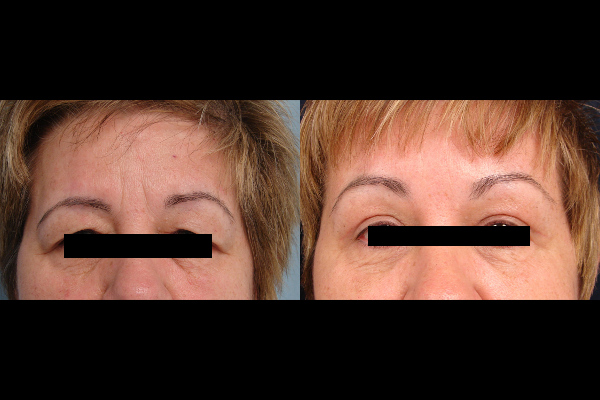 brow-lift-before-and-after-virginia-beach-plastic-sugeon-VA-101-denk