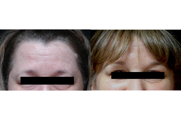 brow-lift-before-and-after-virginia-beach-plastic-surgeon-VA-101-JSA