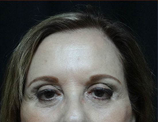 After-Endoscopic Browlift