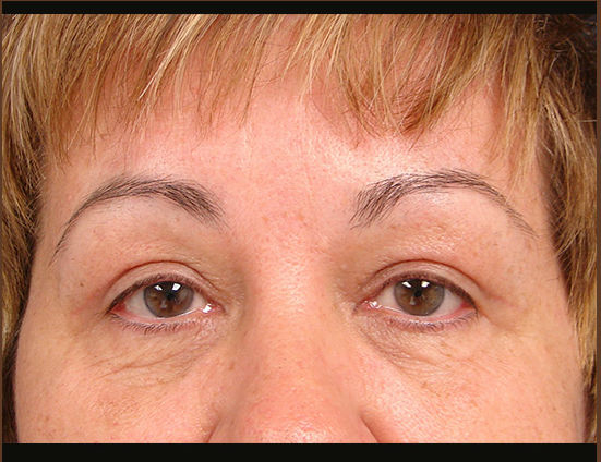 After-Upper eyelid surgery & browlift.