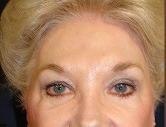 After-Facelift, necklift, browlift & upper and lower eyelid surgery
