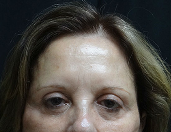Before-Endoscopic Browlift