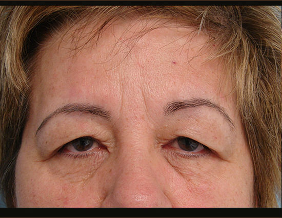 Before-Upper eyelid surgery & browlift.