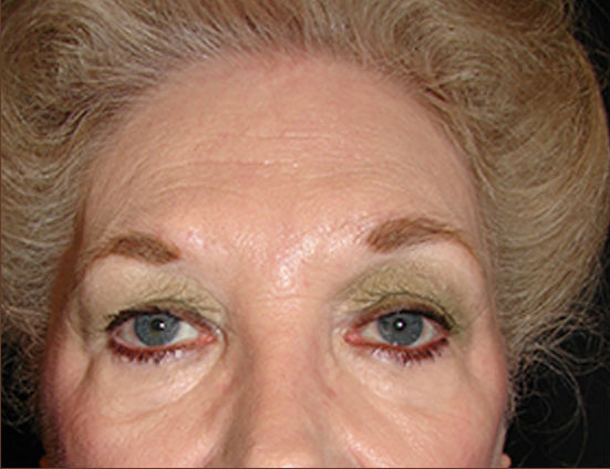 Before-Facelift, necklift, browlift & upper and lower eyelid surgery