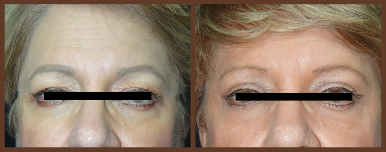 browlift-before-and-after-1-virginia-beach-plastic-surgeon-VA-0165-denk
