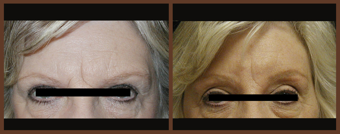 browlift-before-and-after-1-virginia-beach-plastic-surgeon-VA-0166-JSA-jpg