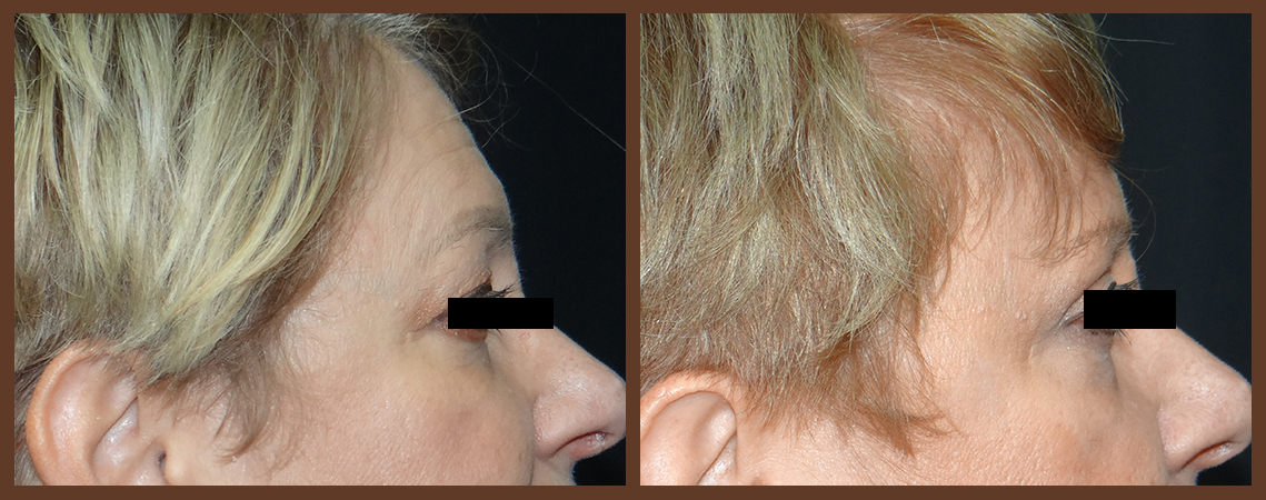 browlift-before-and-after-2-virginia-beach-plastic-surgeon-VA-0165-denk