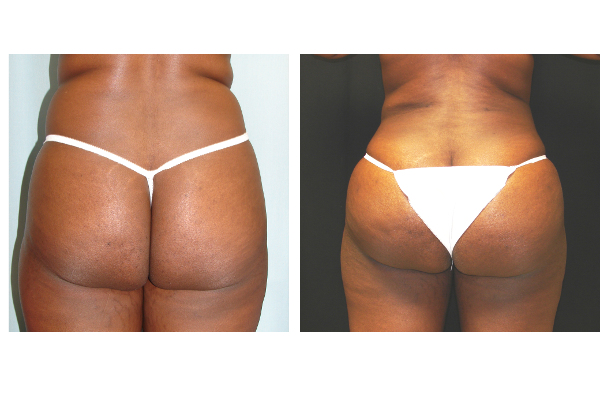 buttock-enhancement-before-and-after-1-virginia-beach-plastic-surgeon-VA-101-Denk