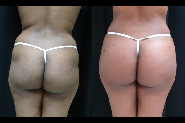 buttock-enhancement-before-and-after-1-virginia-beach-plastic-surgeon-VA-101-JSA