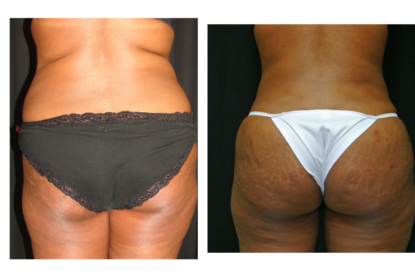 buttock-enhancement-before-and-after-1-virginia-beach-plastic-surgeon-VA-102-Denk