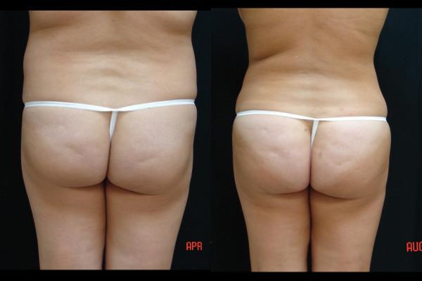 buttock-enhancement-before-and-after-1-virginia-beach-plastic-surgeon-VA-102-JSA