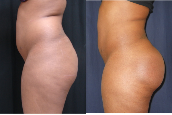 buttock-enhancement-before-and-after-1-virginia-beach-plastic-surgeon-VA-102-Jacobs