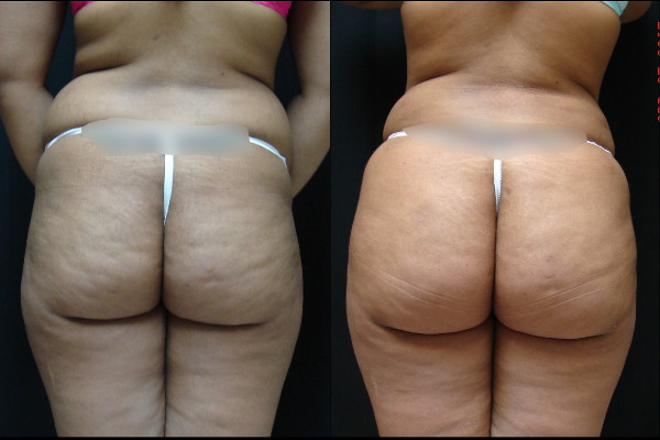 buttock-enhancement-before-and-after-1-virginia-beach-plastic-surgeon-VA-103-JSA