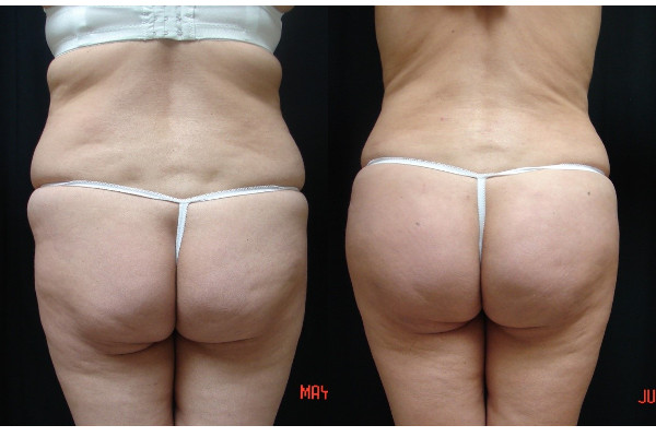 buttock-enhancement-before-and-after-1-virginia-beach-plastic-surgeon-VA-104-JSA