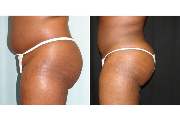 buttock-enhancement-before-and-after-2-virginia-beach-plastic-surgeon-VA-101-Denk