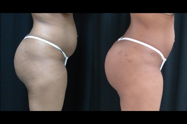 buttock-enhancement-before-and-after-2-virginia-beach-plastic-surgeon-VA-101-JSA