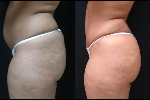buttock-enhancement-before-and-after-2-virginia-beach-plastic-surgeon-VA-102-JSA