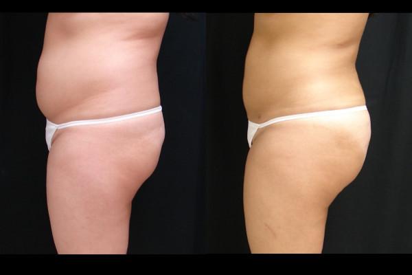 buttock-enhancement-before-and-after-2-virginia-beach-plastic-surgeon-VA-102-JSA