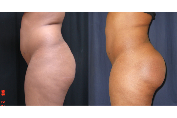 buttock-enhancement-before-and-after-2-virginia-beach-plastic-surgeon-VA-102-Jacobs