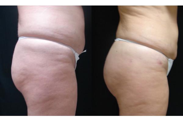 buttock-enhancement-before-and-after-2-virginia-beach-plastic-surgeon-VA-104-JSA