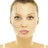 virginia-beach-cheek-augmentation-cosmetic-surgery