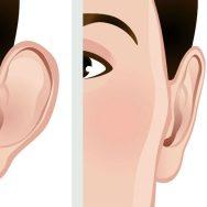 virginia-beach-cosmetic-ear-surgery-otoplasty