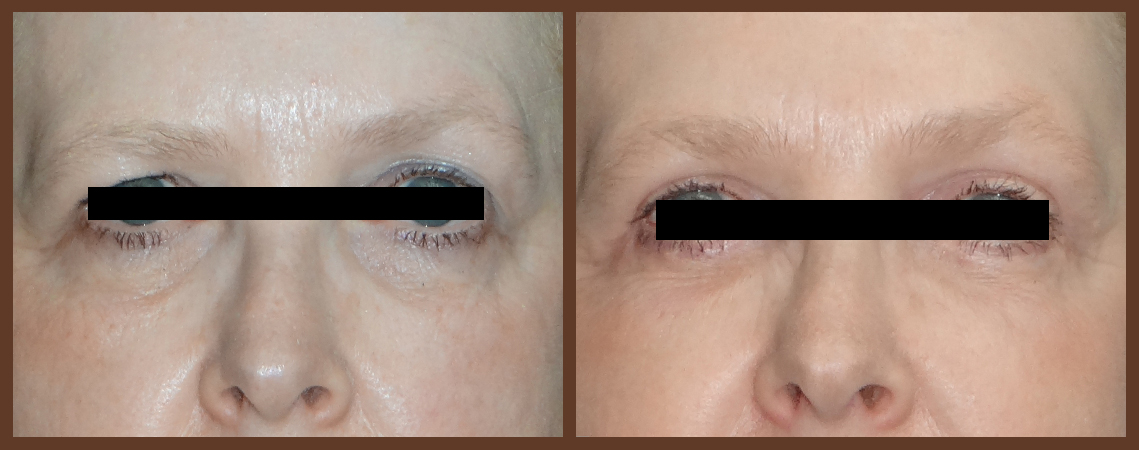 eyelid-before-and-after-1-virginia-beach-plastic-surgeon-VA-0131-denk