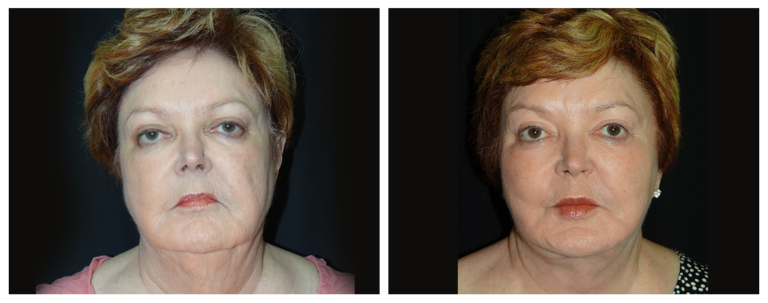 facelift-before-and-after-1-virginia-beach-plastic-surgeon-VA-0105-denk