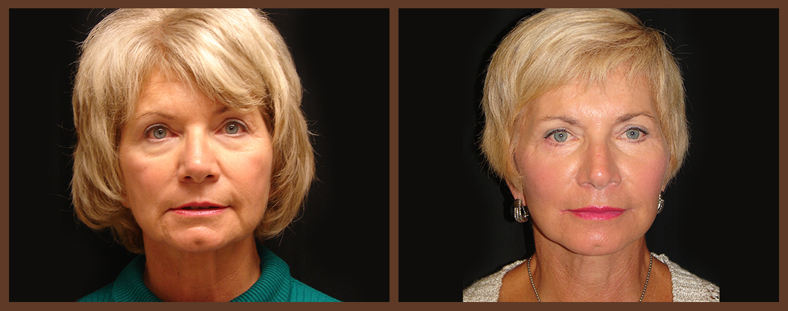 facelift-before-and-after-1-virginia-beach-plastic-surgeon-VA-0106-denk