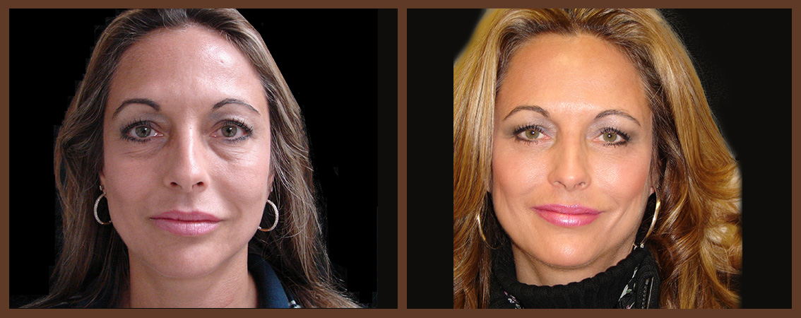 facelift-before-and-after-1-virginia-beach-plastic-surgeon-VA-0107-denk