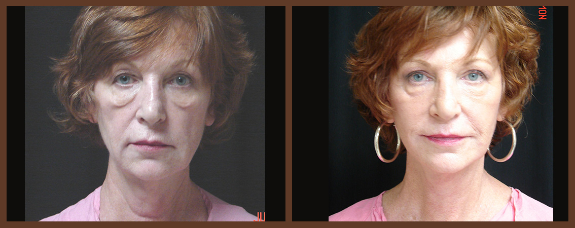 facelift-before-and-after-1-virginia-beach-plastic-surgeon-VA-0108-denk