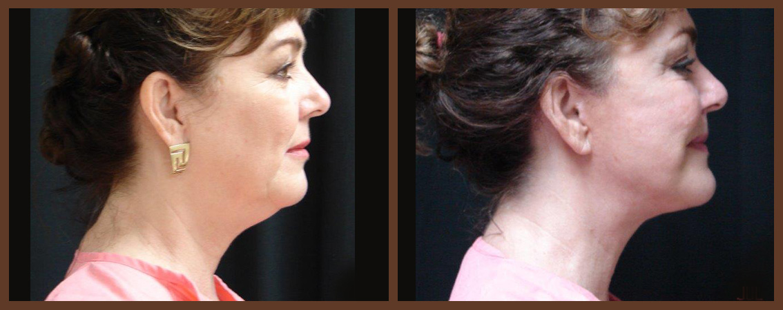 Facelift Before And After 1 Virginia Beach Plastic