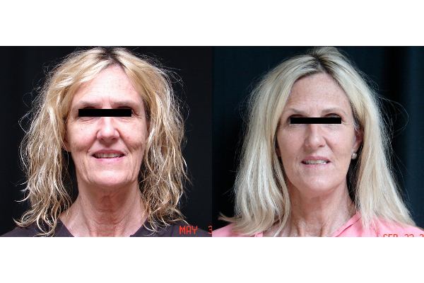 facelift-before-and-after-1-virginia-beach-plastic-surgeon-VA-101-JSA