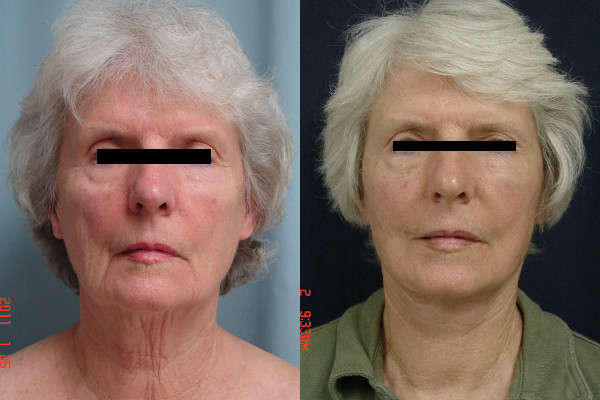 facelift-before-and-after-1-virginia-beach-plastic-surgeon-VA-101-Jacobs