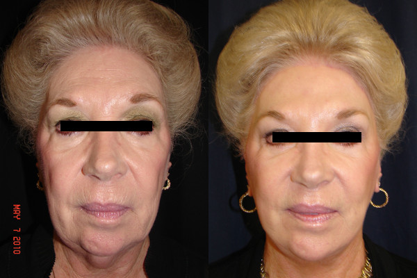 facelift-before-and-after-1-virginia-beach-plastic-surgeon-VA-101-denk