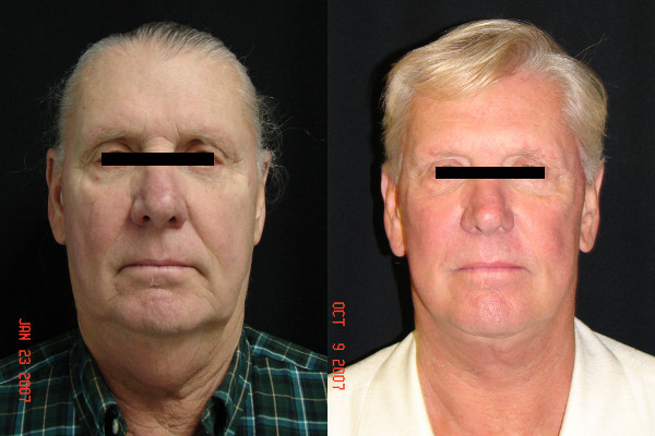 facelift-before-and-after-1-virginia-beach-plastic-surgeon-VA-102-Jacobs