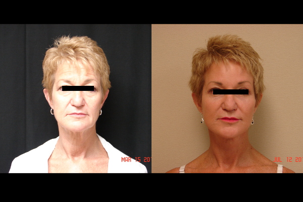 facelift-before-and-after-1-virginia-beach-plastic-surgeon-VA-103-JSA
