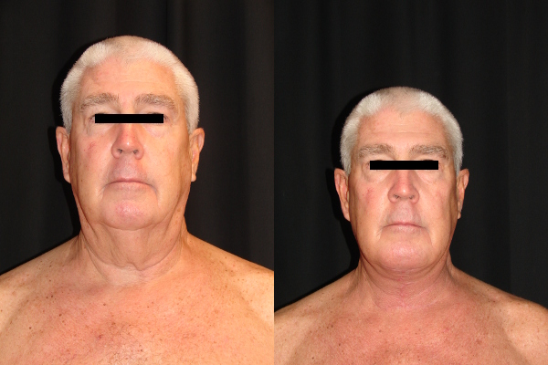 facelift-before-and-after-1-virginia-beach-plastic-surgeon-VA-103-denk