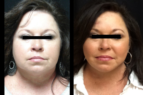 facelift-before-and-after-1-virginia-beach-plastic-surgeon-VA-104-JSA