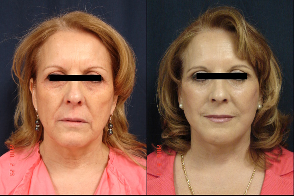 facelift-before-and-after-1-virginia-beach-plastic-surgeon-VA-104-JSJ