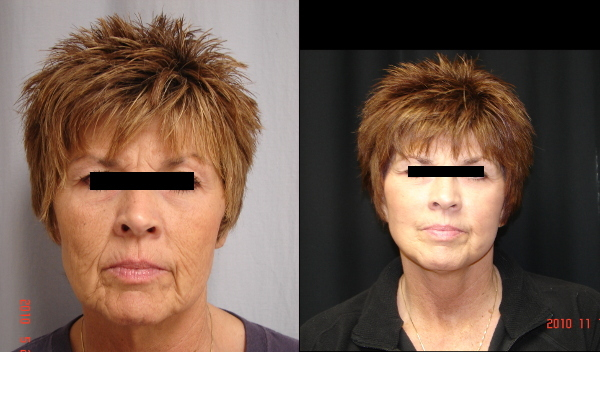 facelift-before-and-after-1-virginia-beach-plastic-surgeon-VA-105-JSJ